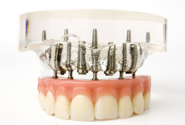 Dentures Overview