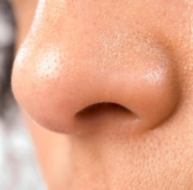cirugia-de-nariz