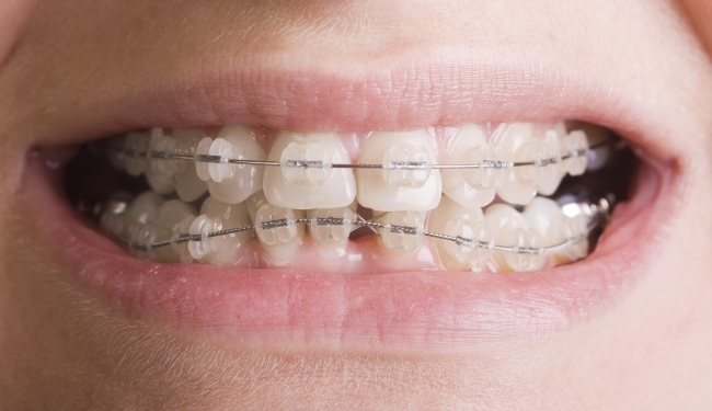 Dental Braces Find Dentist In Mexico