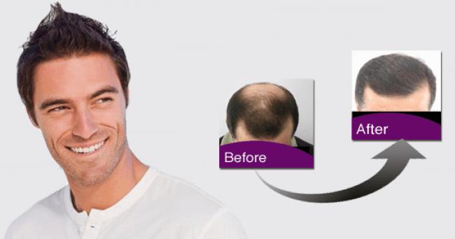 transplante-de-cabello