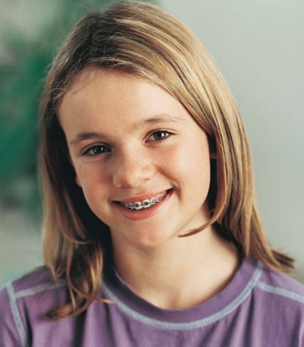 Dental Braces Overview